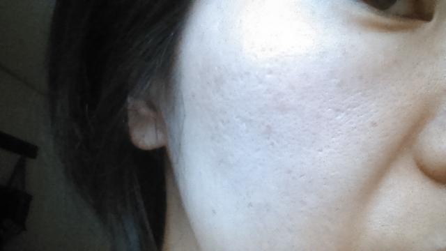 お肌の毛穴が目立つ女性