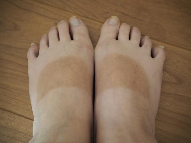 ムラ焼けした足の甲