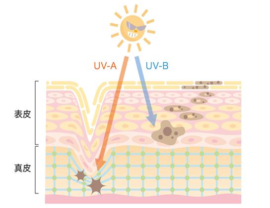 紫外線と肌